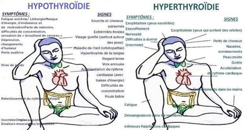 Thyroïde - 3