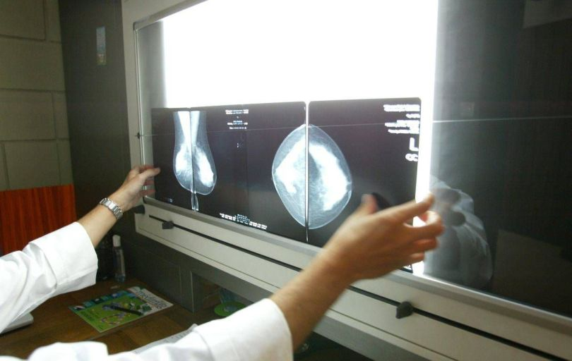 Radiographie cancer sein