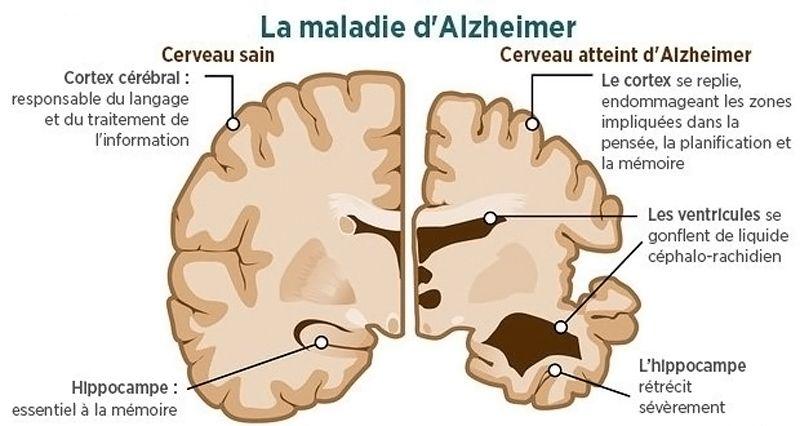 Cerveau - Alzheimer