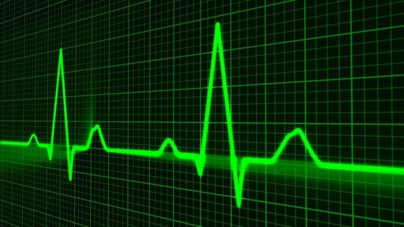 Rhythme cardiaque