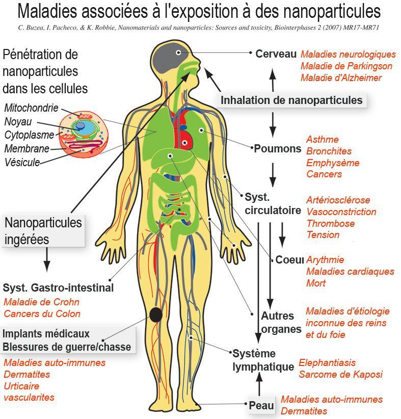 Maladies associées à l_exposition des nanoparticules