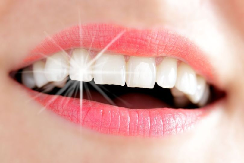 Dents - Bouche femme