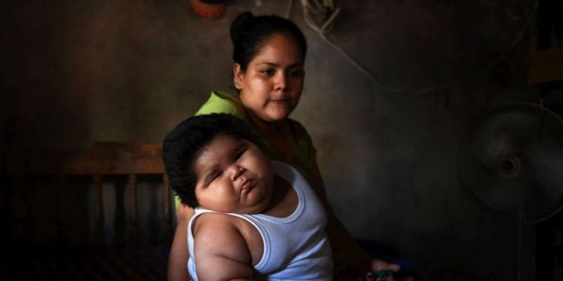 Obésité - Mexique