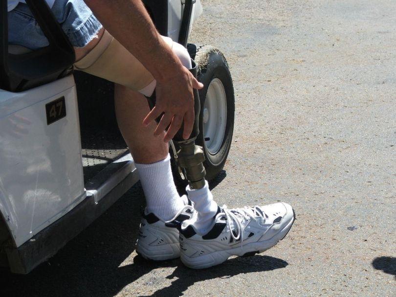 Une jambe bionique