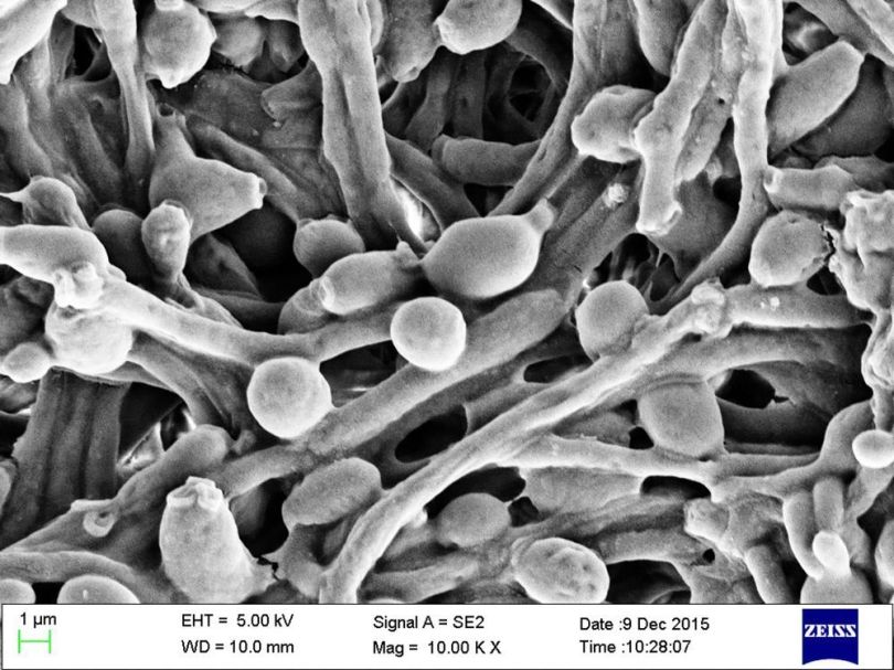 Candida Albicans - 2