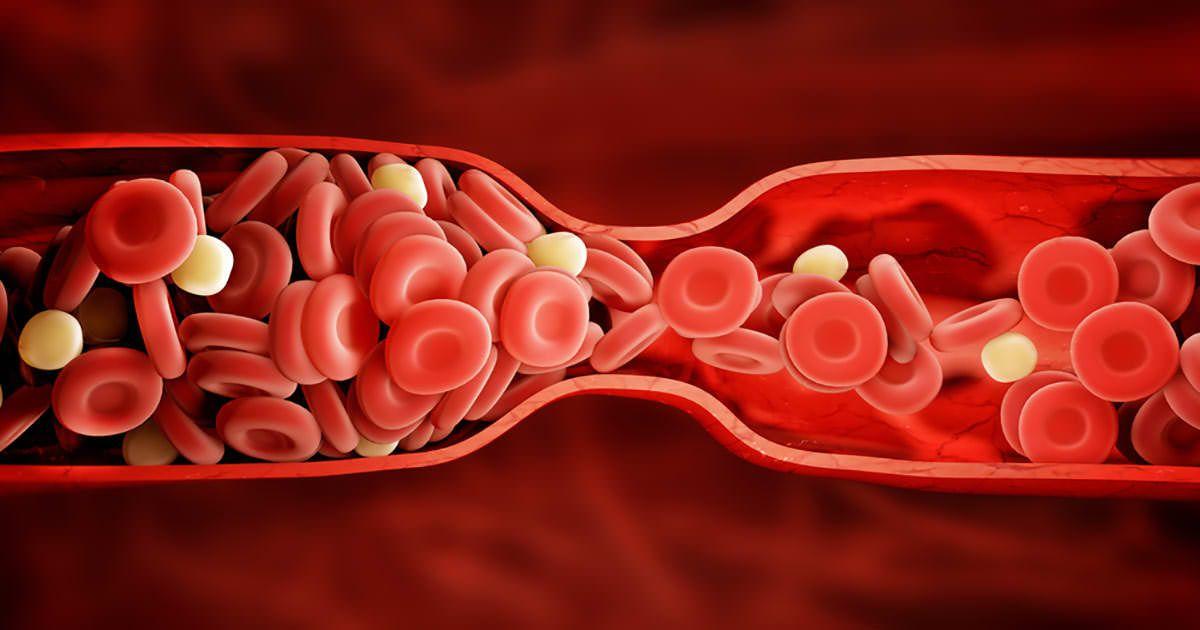 Caillots sanguins : 8 signes qui vous avertissent lorsque qu ...