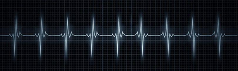 Rythme cardiaque - Tracé