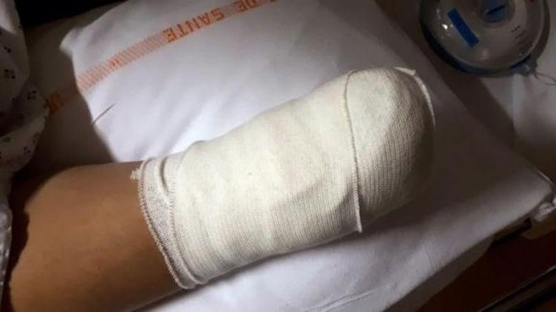 Gilets Jaunes - Main amputée - 3