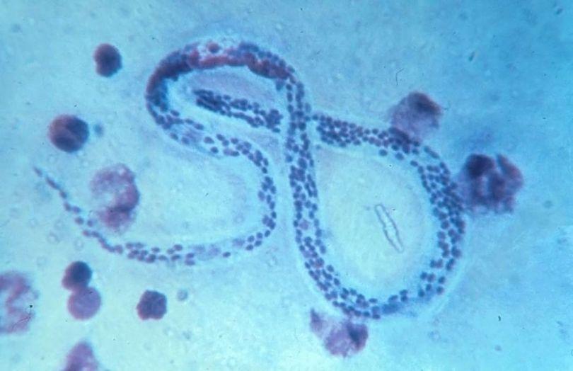 Parasite - 2