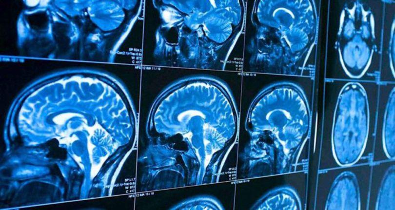 cerveau -brain - 1