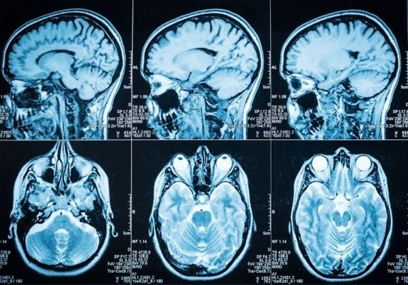 cerveau -brain - 2