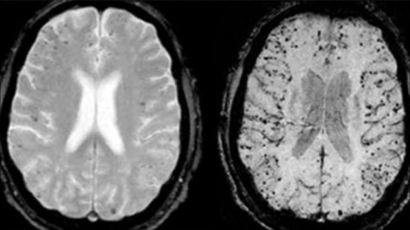 cerveau - coupe - scanner