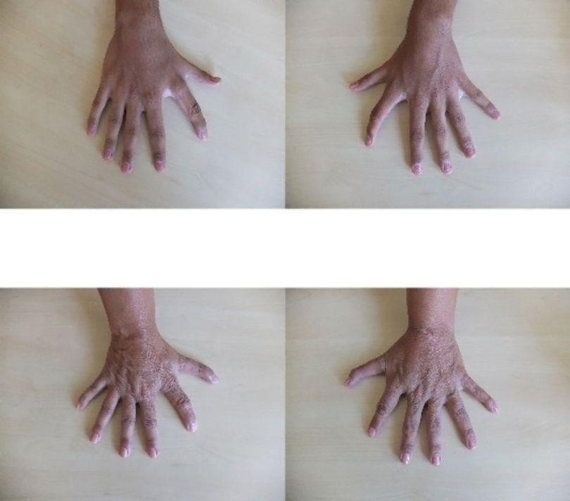Mians - 6 doigts - 6