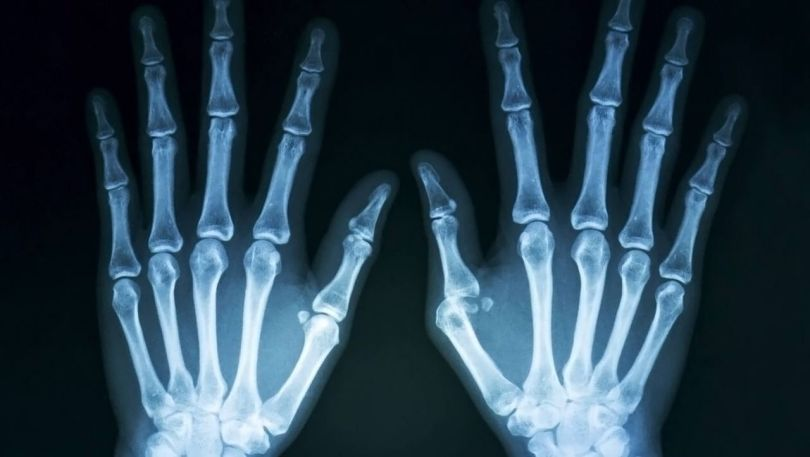 Ostéoporose - 2