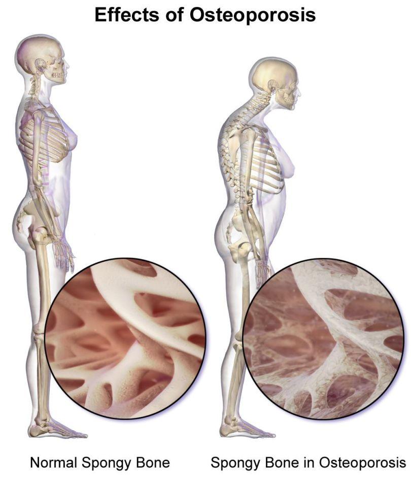 Ostéoporose - 4
