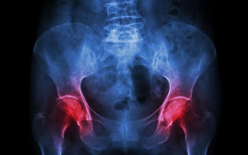 Ostéoporose - 5