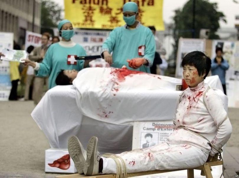 Chine – Organe - 4