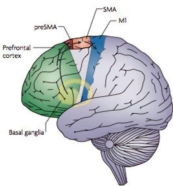 Cerveau -1