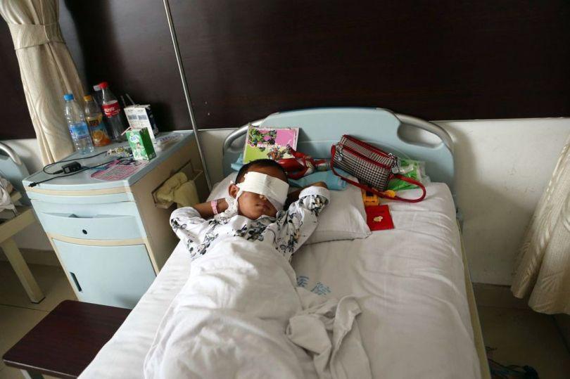 Enfant - Chine - Enucléation - Yeux
