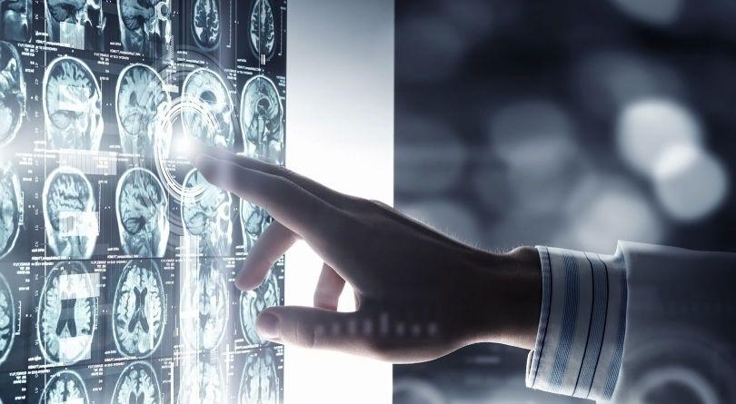 Scanner - Cerveau