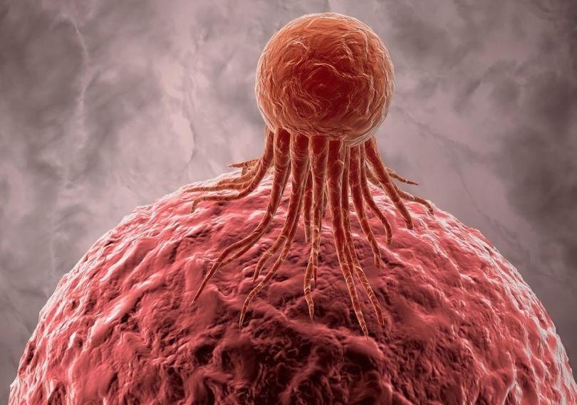 Cellule cancéreuse