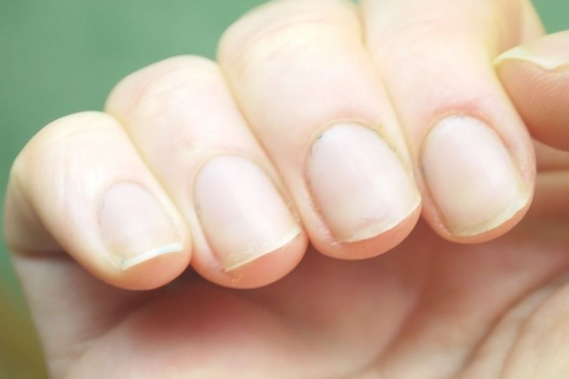 Ongles - Mains - Homme