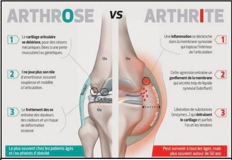 Arthrite - 1