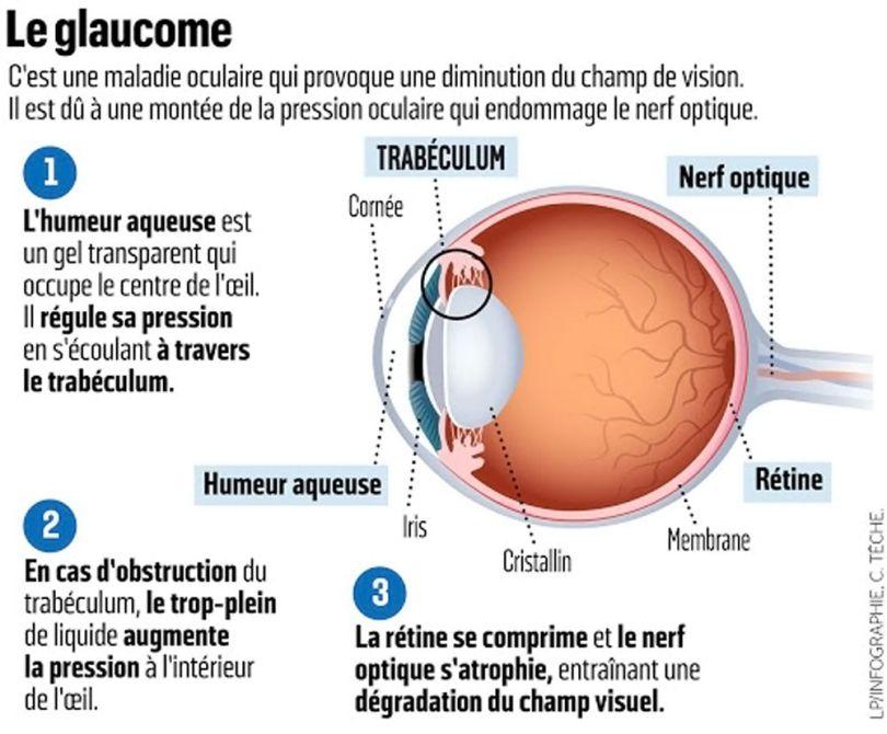 Glaucome - 1